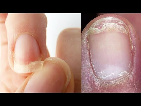 Как избавиться от ломкости ногтей
