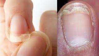 видео Рецепты укрепления тонких ногтей