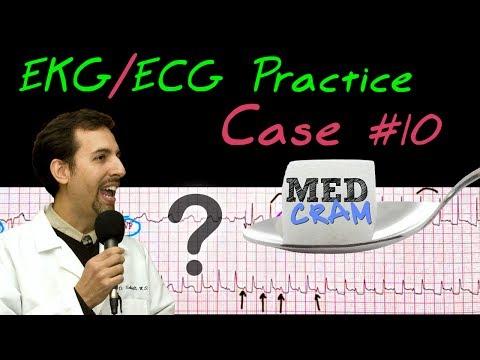 12 Lead ECG Practice Strip Interpretation EKG Case 10