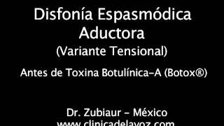 Disfonía Espasmódica (Variante Tensional) pre y post Botox®