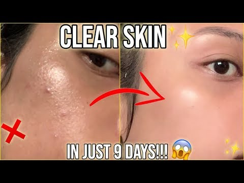 CLEAR PIMPLES IN JUST 9 DAYS EFFECTIVE SKINCARE HACK THATS NOT A SCAM LOL
