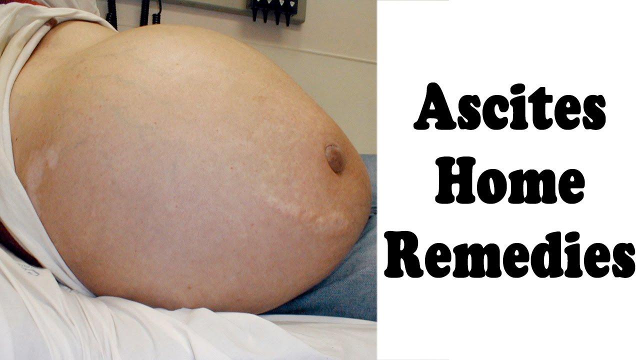 Ascites: Causes, Symptoms, Treatments, Home Remedies forecast