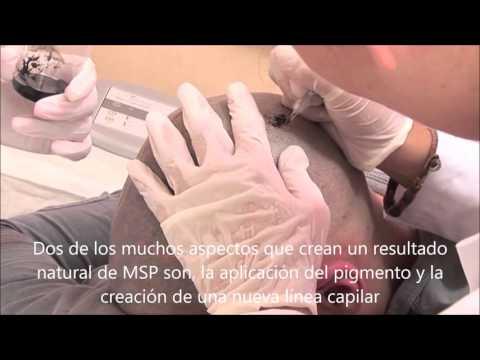 ¿La Micropigmentación capilar (MSP) puede tener una apariencia tan natural? - Vinci Hair Clinic