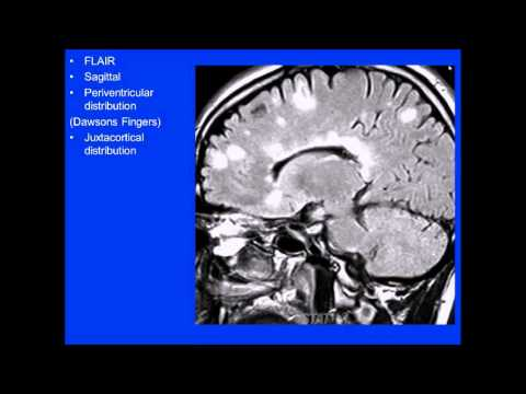 2015 AOCR Radiology Case Review: Neuroradiology - MS