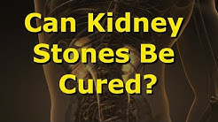 Can Kidney Stones Be Cured?