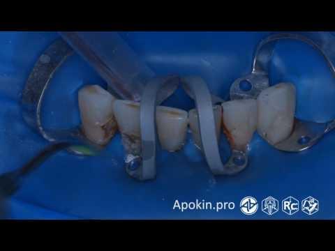 Лечение кариеса V-класса 4.3, 4.2, 4.1, 3.1, 3.2, 3.3 зубов (Rubberdam 153 TorVM 4K) - Апокин А.Д.