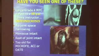 Dr. Gerald Yacobucci presents at the Las Vegas Knee/Shoulder lab thumbnail