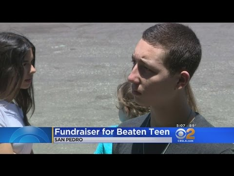 Fumdraiser Held For Badly-Beaten San Pedro High School Baseball Player