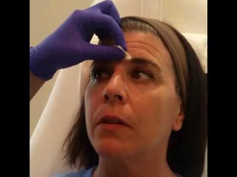 Azura Skin Care Center: Botox 101
