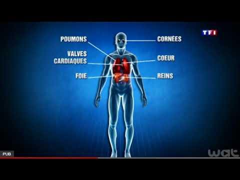 Compréhension orale B2 - Les greffes et les dons d'organes