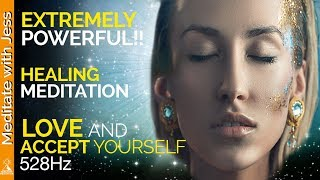 extremely-powerful-guided-meditation-experience-deep-love-and-acceptance-for-yourself-healing