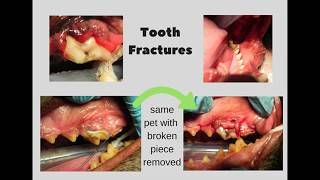 Broken Tooth - More Common Than You Might Think!