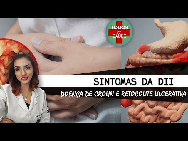 SINTOMAS DA DOENÇA INTESTINAL INFLAMATÓRIA: CROHN E RETOCOLITE ULCERATIVA