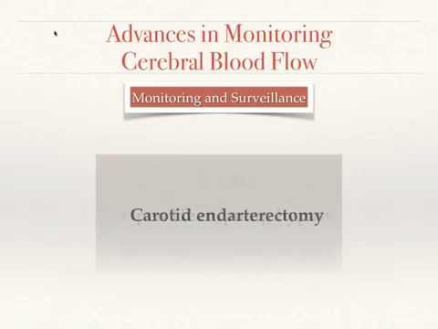Advances in Monitoring Brain Blood Flow (English)