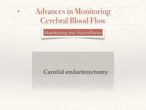Advances in Monitoring Brain Blood Flow (English)