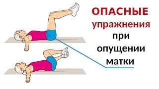 Опасные упражнения при опущении матки. Опущение матки стенок влагалища.