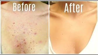 hqdefault - How To Cure Severe Body Acne