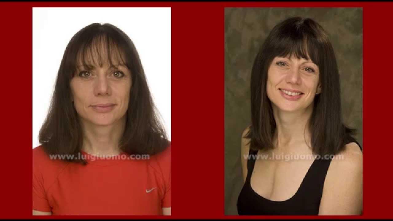 Protesi impianti capelli Uomo Donna Parrucche Parrucca ...