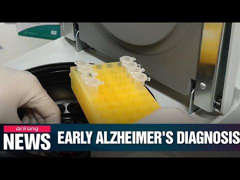 Saliva May Help Identify Alzheimer's