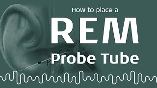 REM: How to perform REM probe tube placement