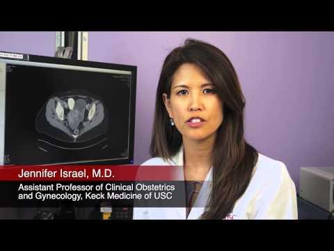 Poliklinika Harni - Endometrioza i određeni podtipovi raka jajnika