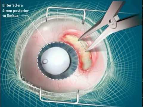 Surgical Animation of RETISERT® procedure