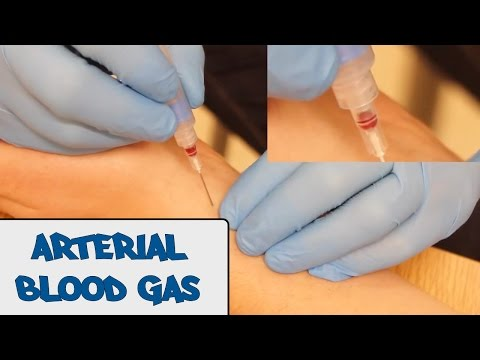 Arterial Blood Gas Sampling (ABG) - OSCE Guide