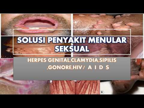 pengobatan-luka-lecet-dan-gatal-di-kelamin-secara-alami