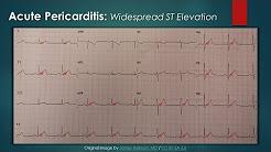 hqdefault - Pr Depression In Pericarditis