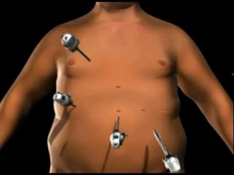 Magenband-Verfahren