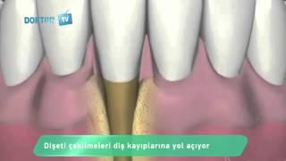 Diş eti çekilmesi nasıl oluşur?