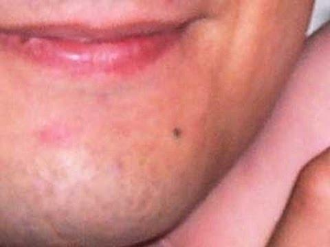 Facial cancerous moless