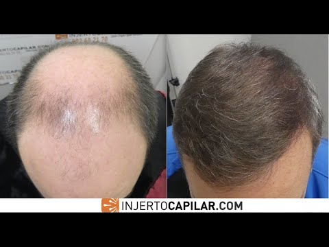 9307FUE Grafts. NW VI With No Med's. 3 Step Strategy In 8 Years. Injertocapilar.com. 615/2011