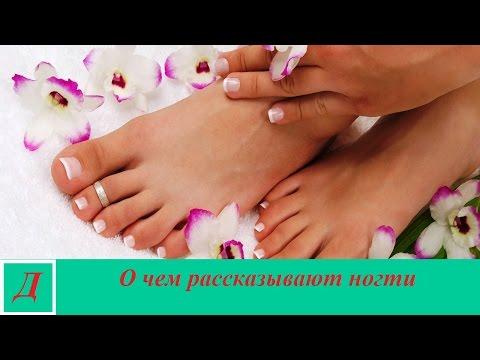 Как распознать болезни по ногтям