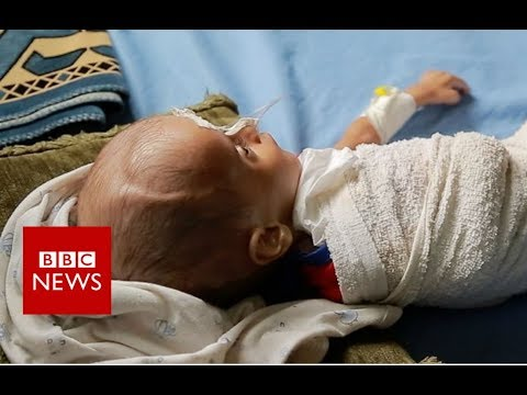 How children are starving in Yemen's war - BBC News