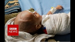 How children are starving in Yemen\'s war - BBC News