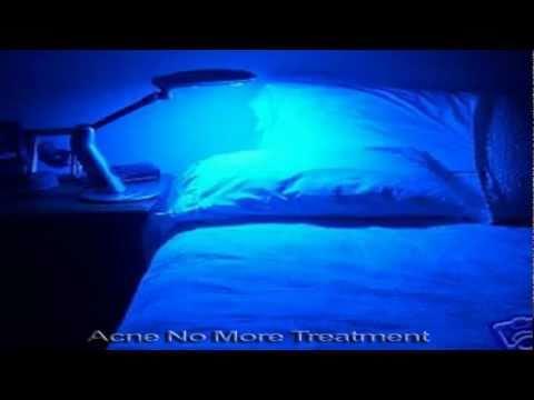 DUSA Pharmaceuticals, Inc. BLU-U Blu u blue light photodynamic therapy illuminator