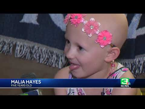 Citrus Heights father shows solidarity with bald daughter