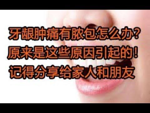 牙齦腫痛有膿胞怎么辦?原來是這些原因引起的! - YouTube