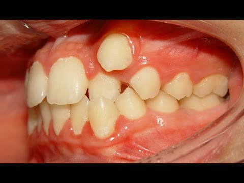 Orthodontic Treatment of Ectopic Upper Canine - No Extraction (Salah 12yrs)