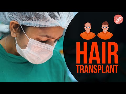 hair-transplant-procedure,-methods-&-recovery-time-(informational-video)