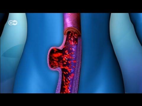 Aneurisma el peligro de ruptura - Prótesis para aorta abdominal