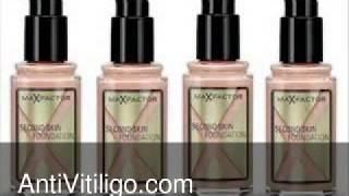 Max Factor Vitiligo Makeup Thumbnail
