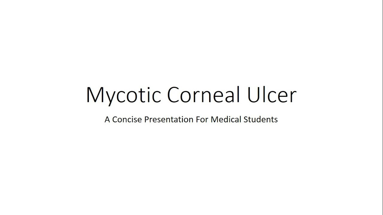 mycotic corneal ulcer fungal keratitis ophthalmology for medical students [ 1280 x 720 Pixel ]