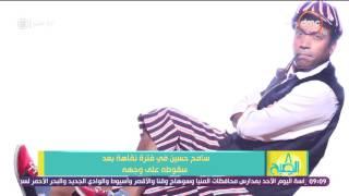 8 الصبح - سامح حسين فى فترة نقاهة بعد سقوطه على وجهه وتعرضه