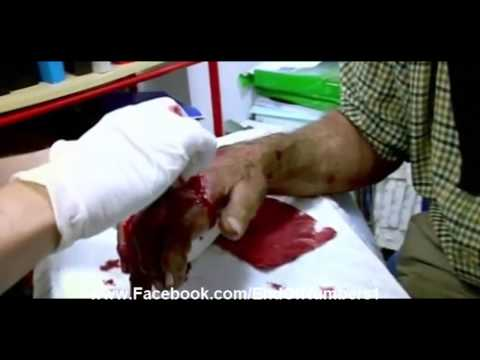 Bizarre hand injury broken bones skin flappying, EndOfNumbers
