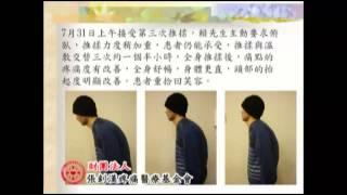 10僵直性脊椎炎的案例