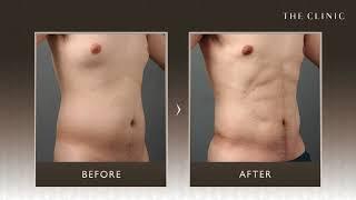 【脂肪吸引】お腹に腹筋ができる!? 男性モニターの症例写真Vol.1|THE CLINIC thumbnail