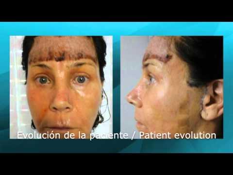 Rejuvenecimiento facial completo (15128)