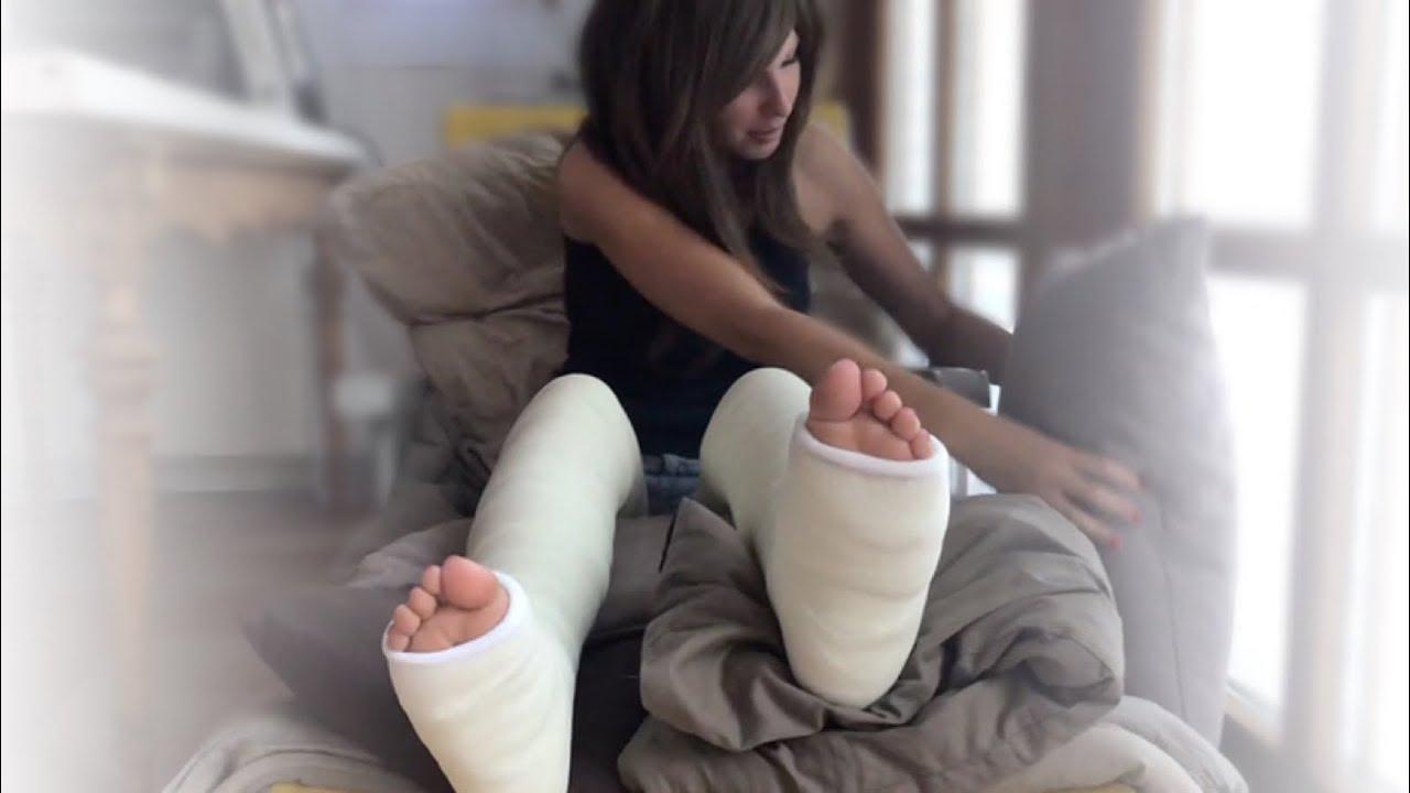 Gips beide beine in Beide Beine